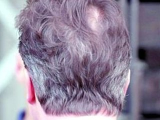 白头发的位置可以看出身体的某些部位的疾病